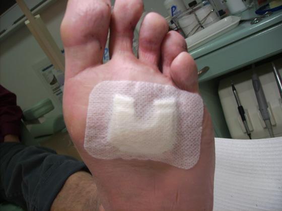 voet knobbel zijkant
