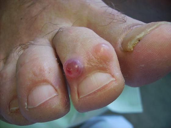 pijn in voeten en benen